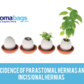 Incidence of Parastomal Hernias and Incisional Hernias