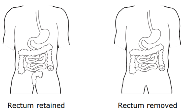 Retained and Removed Rectum