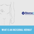 What is an Incisional Hernia