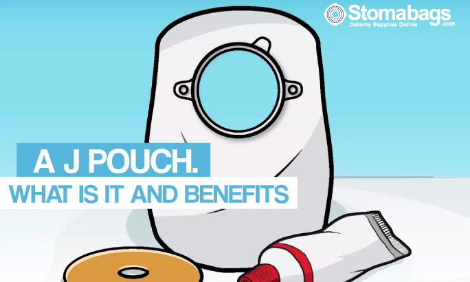 J-Pouch: What is it?