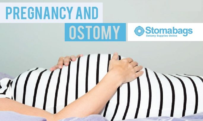 Pregnancy and ostomy