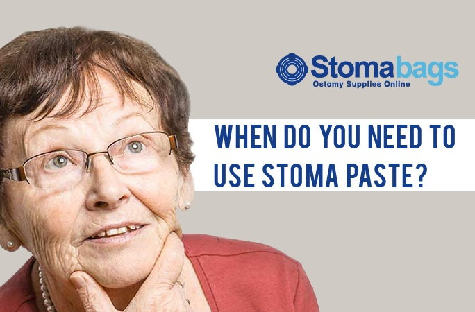 When Do You Need to Use Stoma Paste